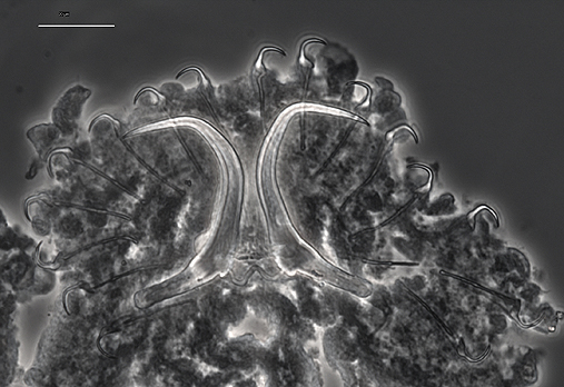 Microscopic picture of G. cyclopteri